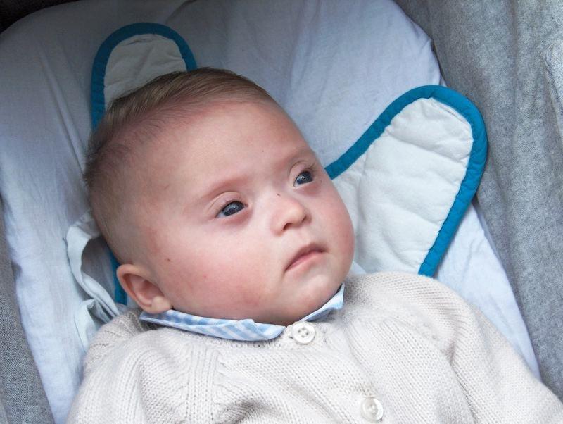 Дети с синдромом Дауна имеют эпикант