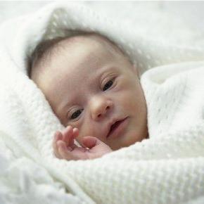Новорожденный с синдромом Дауна