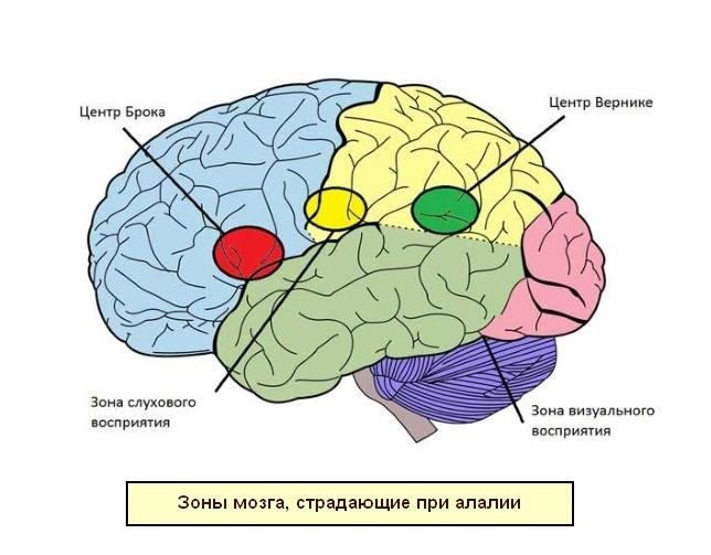 Зоны мозга, поврежденные при алалии
